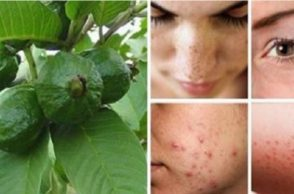 use-guava-leaves-to-beat-wrinkles-acne-dark-spots-and-skin-allergies-696x371
